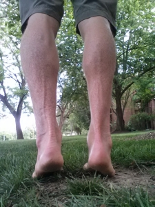 Right calf (clubfoot side) hypotrophy relative to left.